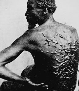 slavery_scars
